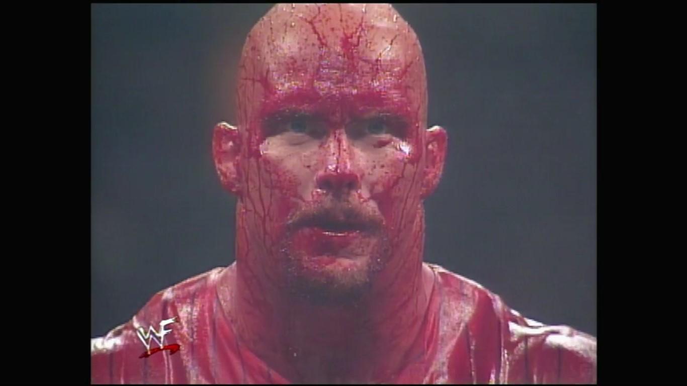 Austin bleeding